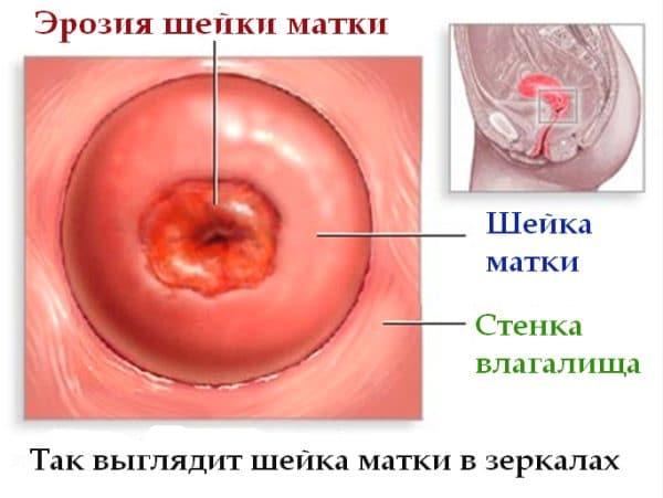 Есть ли опасность в выделениях после применения вагинальных свечей