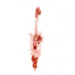 Выделения с кровью но не месячные
