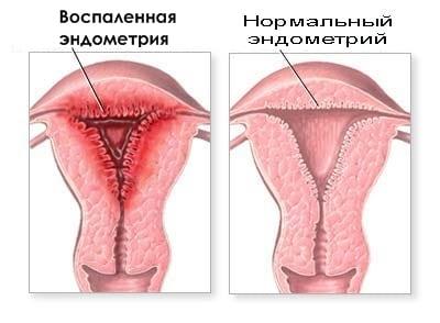 История болезни аденофлегмона подчелюстной области