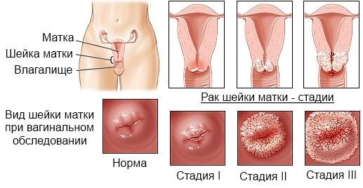 Рак матки: причины и диагностика